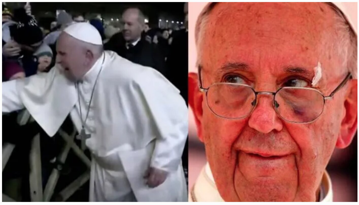 New Video Shows Pope Francis Slapping ANOTHER Woman!!!