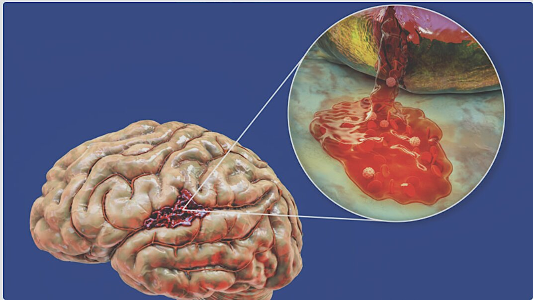 """Renowned Brain Surgeons Warn Covid-19 """"Vaccines"""" Are Literally Eating People's Brains"""